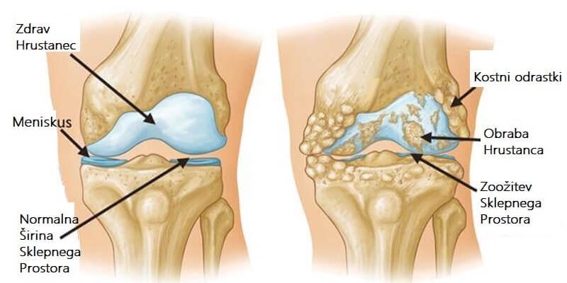 Artritis Kolena
