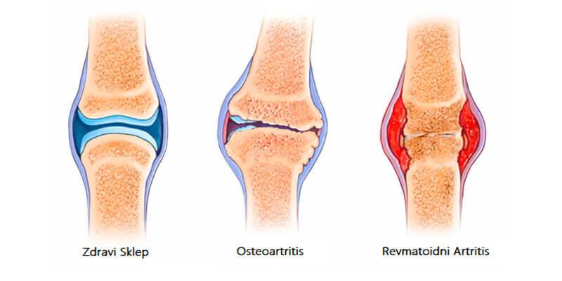 Vrste Artritisa